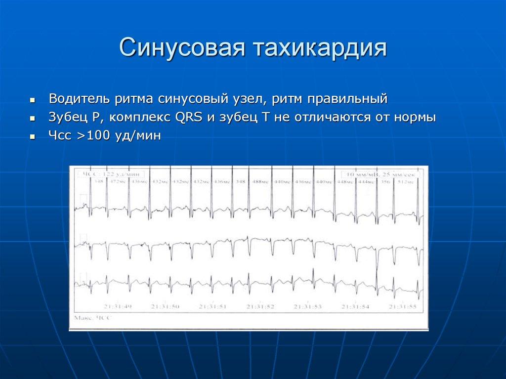 Синусовая тахикардия: причины, симптомы, диагностика, лечение | кардио болезни