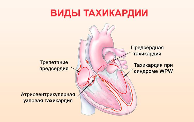 Аритмия при всд: симптомы, причины, методы лечения
