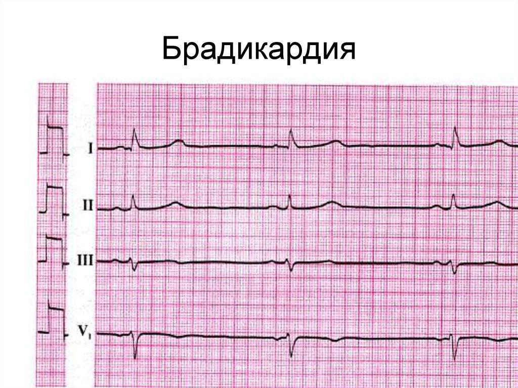 Умеренная брадикардия