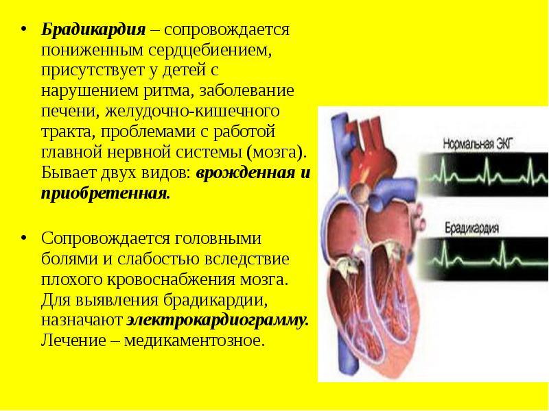 Брадикардия у детей: причины развития, признаки на экг, лечение