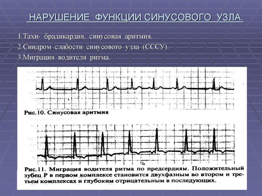 Признаки аритмии на экг: расшифровка пленок