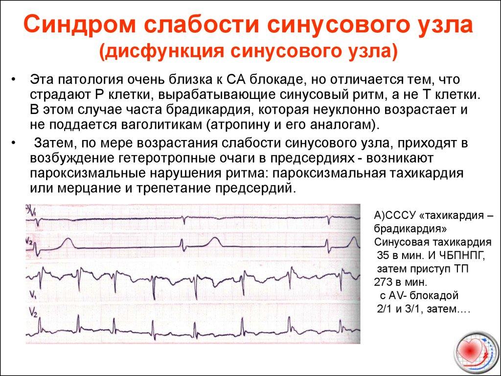 Синусовая аритмия: понятие, причины, проявления, диагностика и вид на экг, терапия
