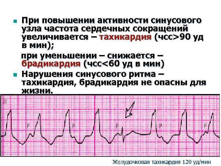 Чем поднять пульс не поднимая давления?
