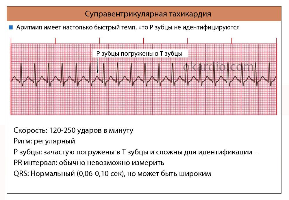 Наджелудочковая аритмия