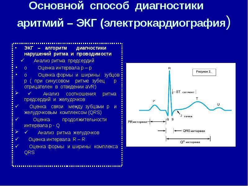 Нарушение проводимости сердца: понятие, виды (внутрипредсердной, внутрижелудочковой), проявления, принципы терапии