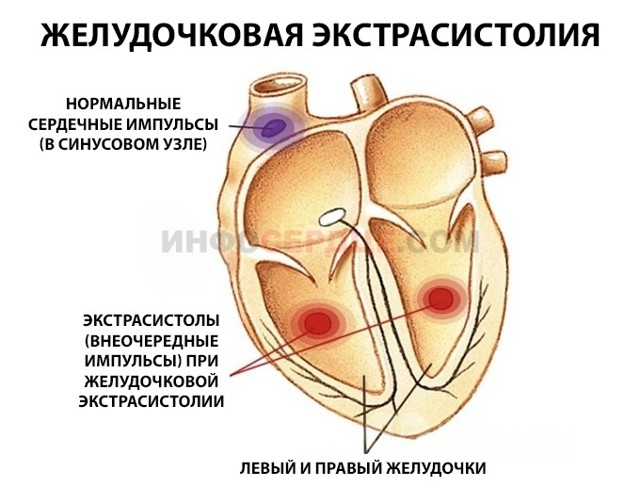 Экстрасистолия | симптомы | диагностика | лечение - docdoc.ru