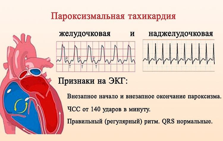 Пароксизмальная реципрокная ав узловая тахикардия лечение