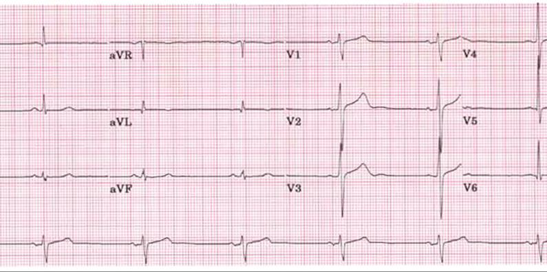 Причины нарушения в ритме сердце – как лечат тахикардию и брадикардию