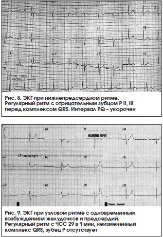 Что такое синусовый ритм сердца?