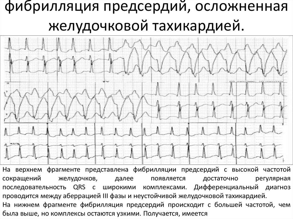 Чем отличаются аритмия и тахикардия: причины, признаки и классификация