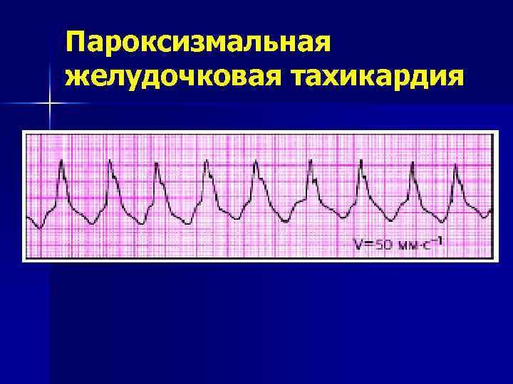 Пароксизмальная av узловая реципрокная тахикардия