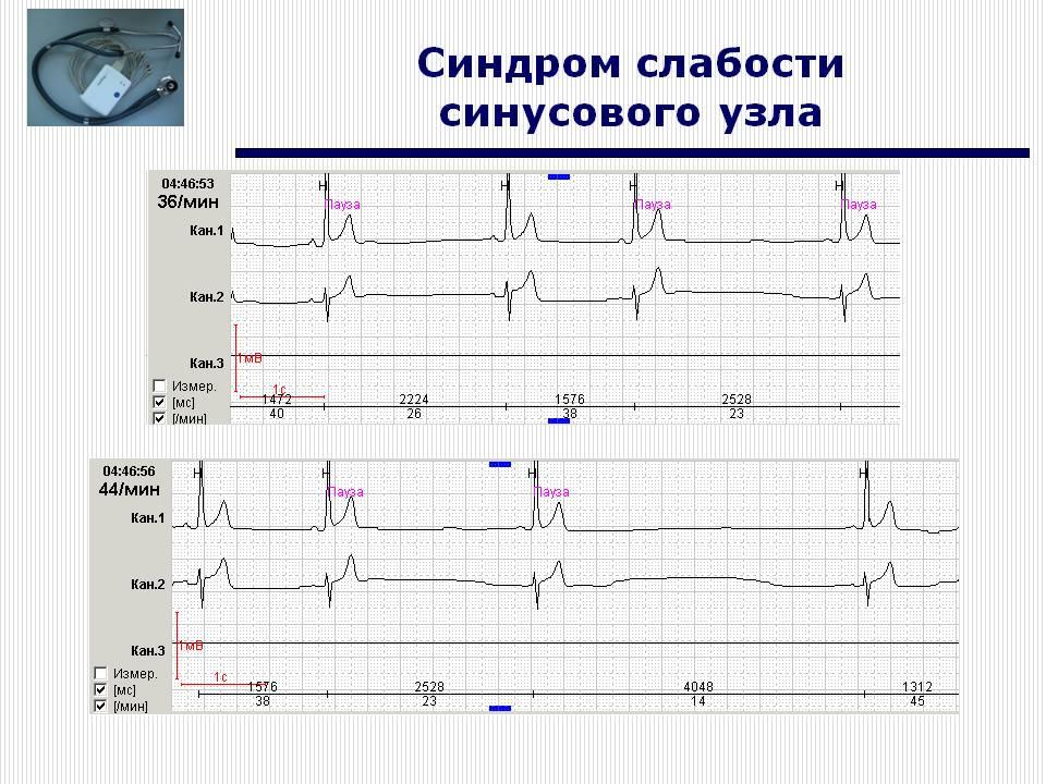 Аритмия на экг: фото с расшифровкой признаков