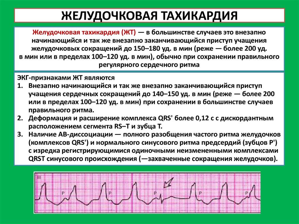Нарушения ритма сердца (аритмии)