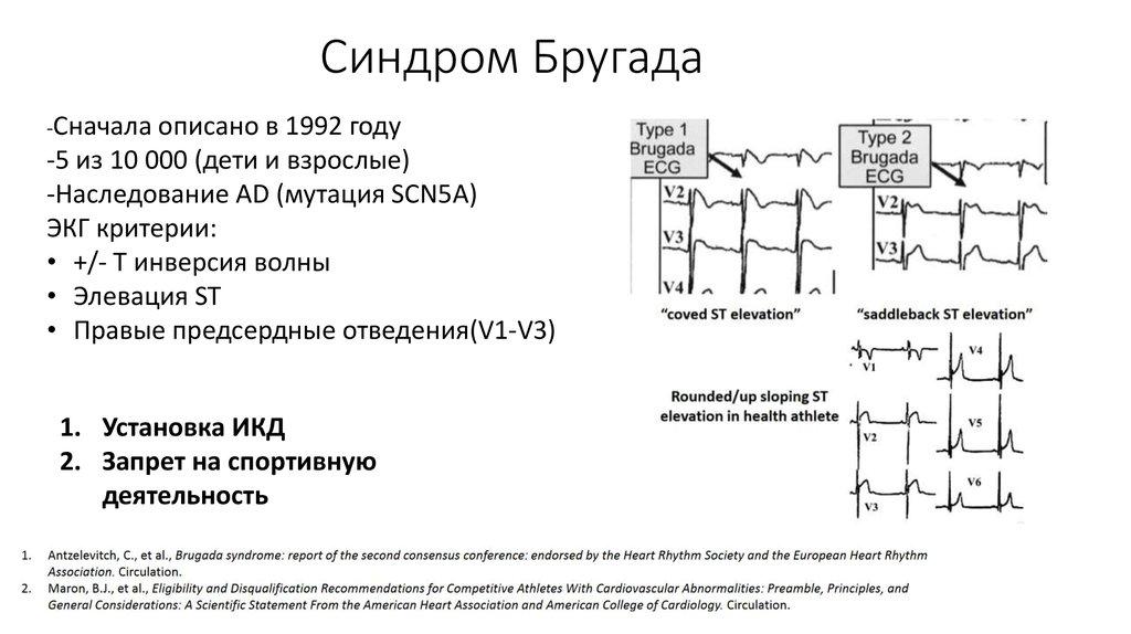 Понятие, лечение и признаки синдрома бругада на экг