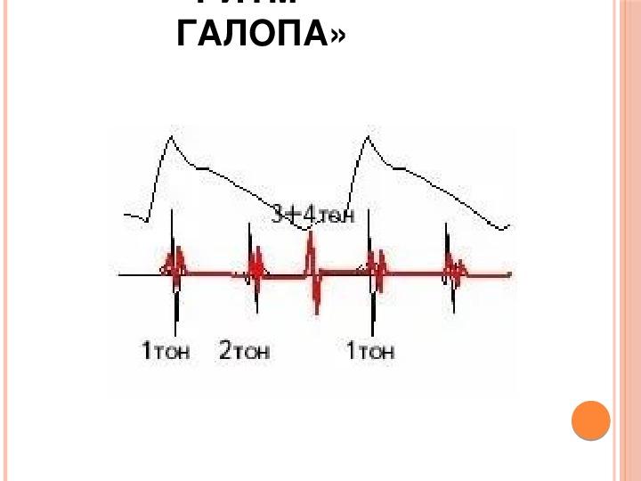 Ритм галопа при сердечной недостаточности