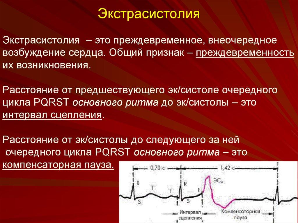 Суправентрикулярная экстрасистолия