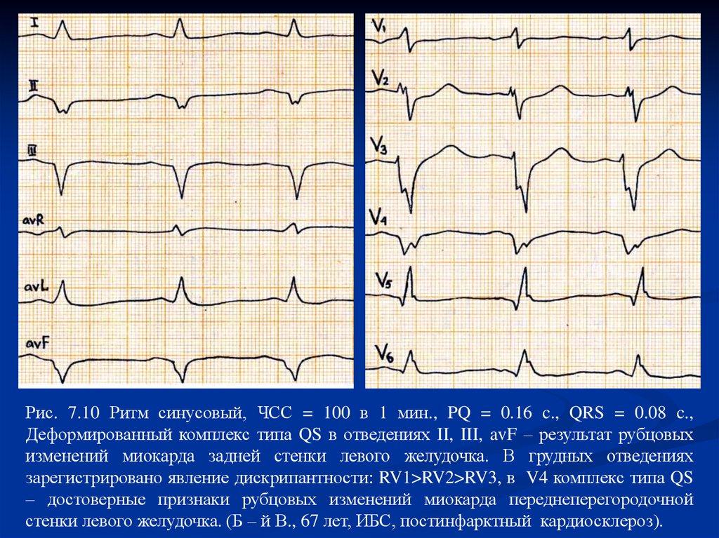 Синусовый ритм сердца на экг — что это значит и о чем может рассказать