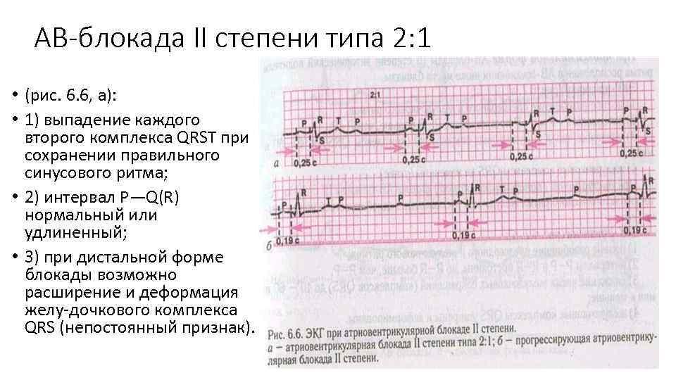 Атриовентрикулярная блокада 1, 2, 3 степени у ребенка