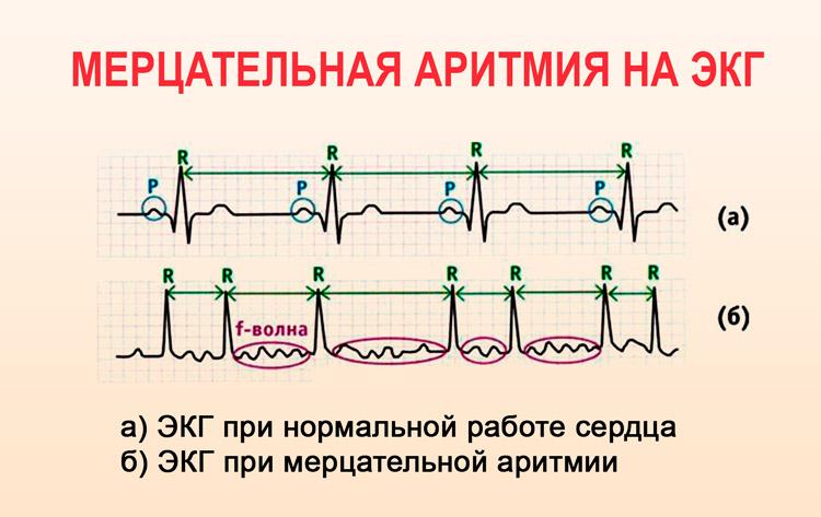 Отличия между тахикардией и аритмией