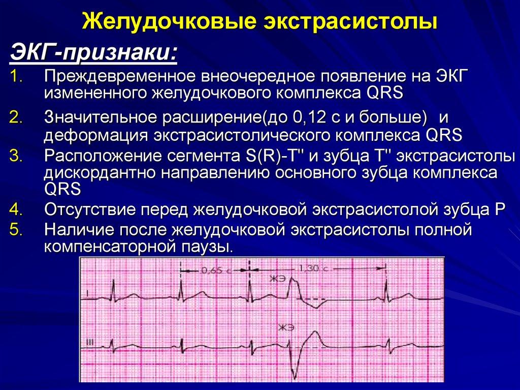 Суправентрикулярная аритмия