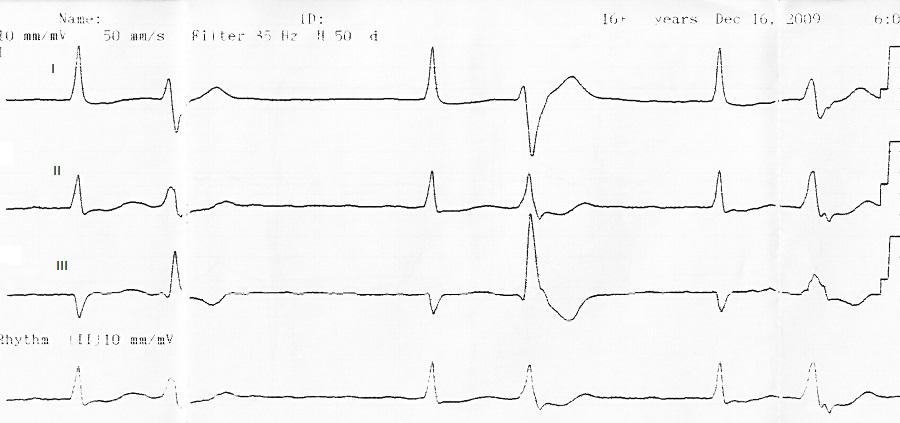 Экстрасистолы сердца – опасно ли это и что делать?