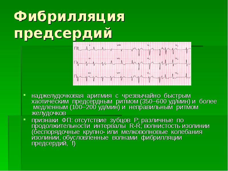 Фибрилляция предсердий (мерцательная аритмия): формы, признаки, методы лечения