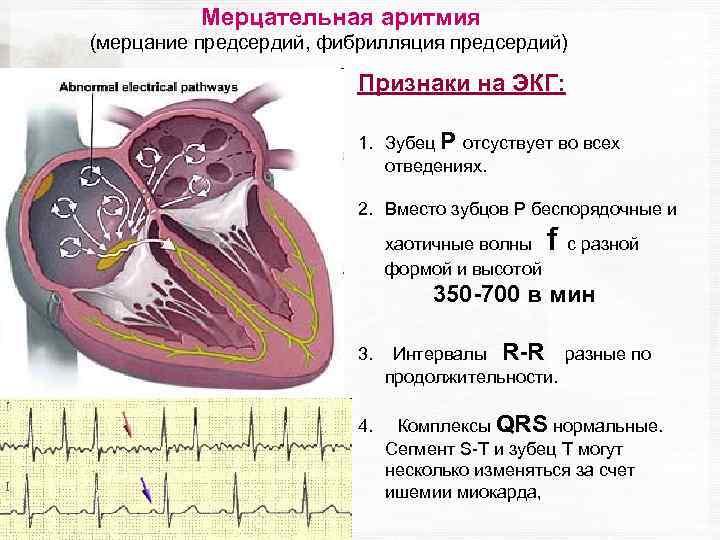 Нарушения сердечной проводимости: симптомы, причины, диагностика и лечение нарушения сердечной проводимости